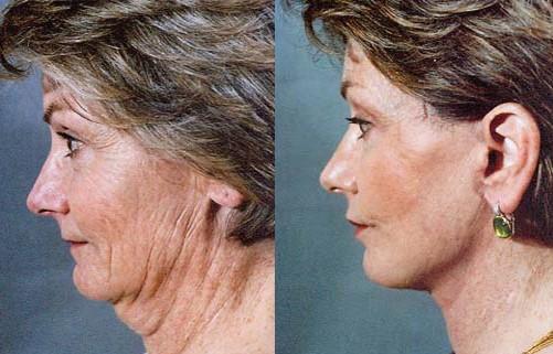 lifting obličeje (facelifting)